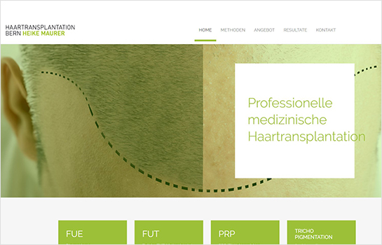 Haartransplantation Bern MotoCMS-based Website